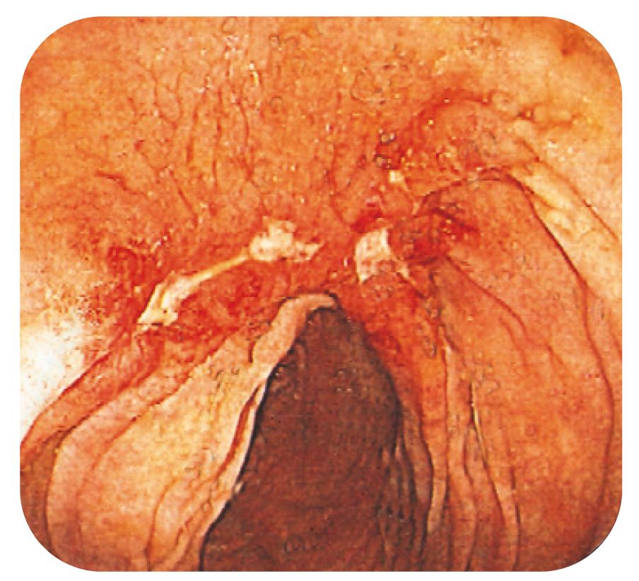 Bild 1. Deformerad och ulcererad slemhinna vid CD.