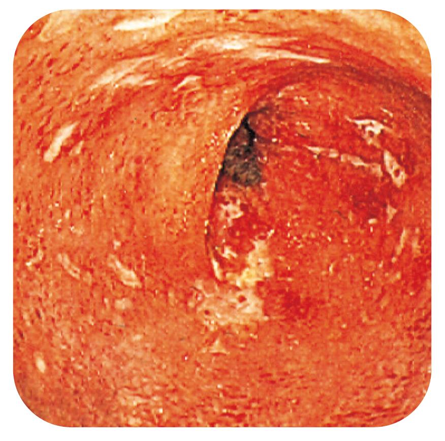 Bild 3. Diffus inflammation vid CD med början till djupare ulcerationer.