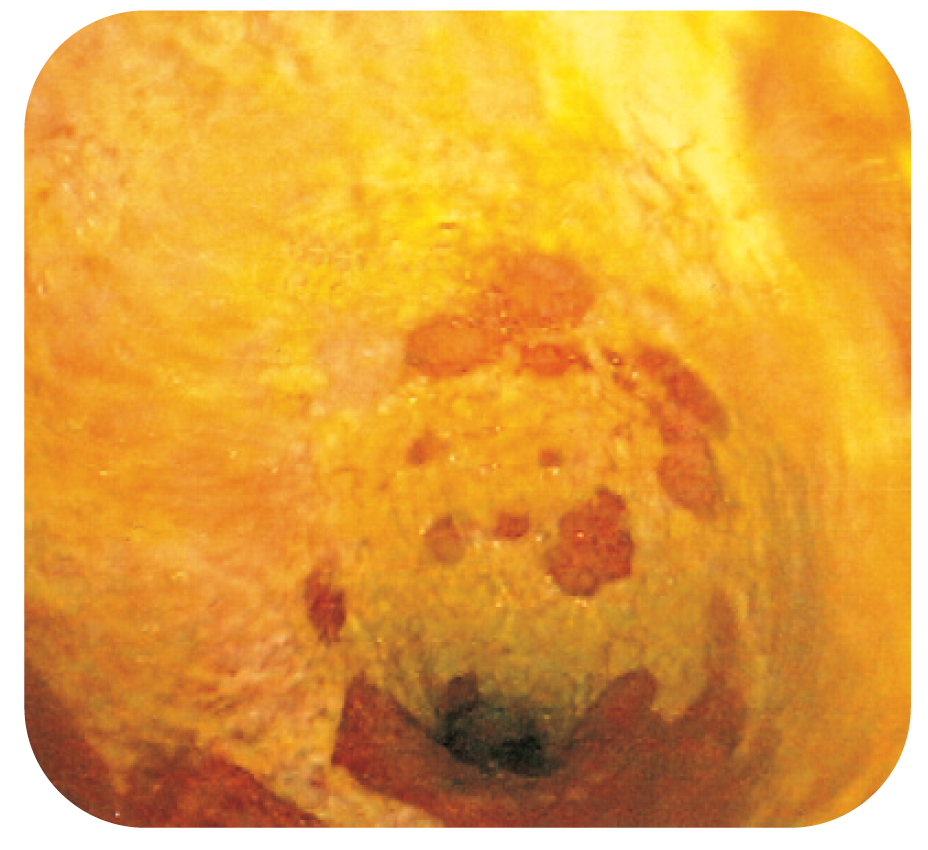 Bild 7. Gulvita beläggningar på slemhinnan vid Clostridium difficile-associerad pseudomembranös kolit.