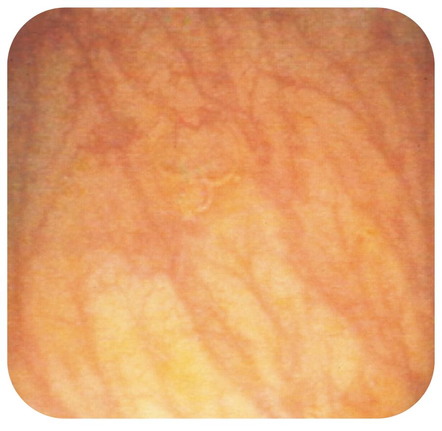 Bild 8. Diffus, gles kärlteckning vid kollagen kolit.