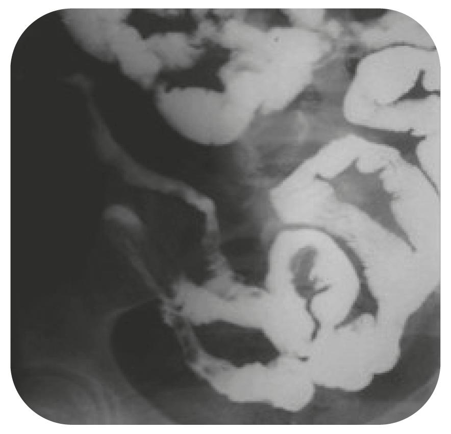 Bild 11. Radiologisk bild. Stenoserande inflammatoriska förändringar i distala ileum.
