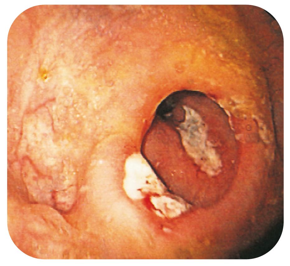 Bild 13. Anastomosulcus och djupa ulcerationer även i neoterminala ileum hos CD-patient opererad med ileocekalresektion.