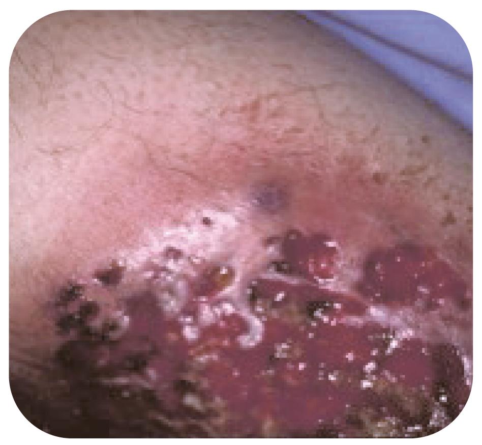 Bild 17. Pyoderma gangrenosum.