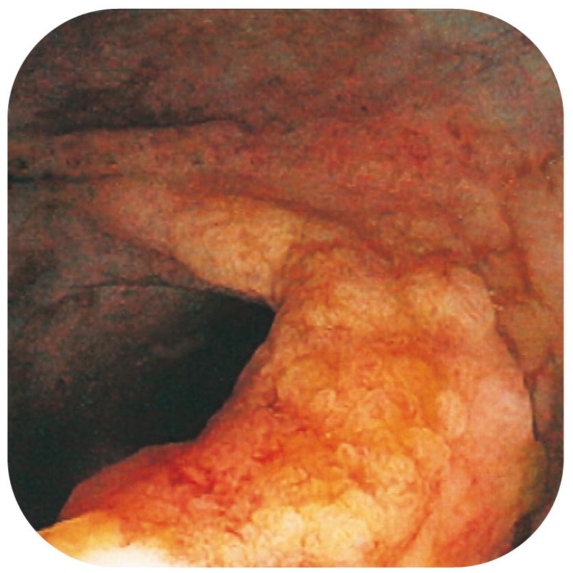 Bild 21. Polypös förändring med höggradig dysplasi hos patient med långvarig UC.