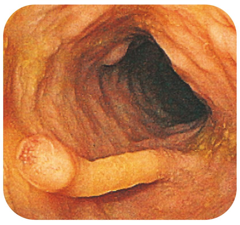 Bild 22. Filiforma postinflammatoriska polyper. Denna typ av polyper har normalt inget malignitetspotential men kan ändå försvåra bedömning av slemhinnan.